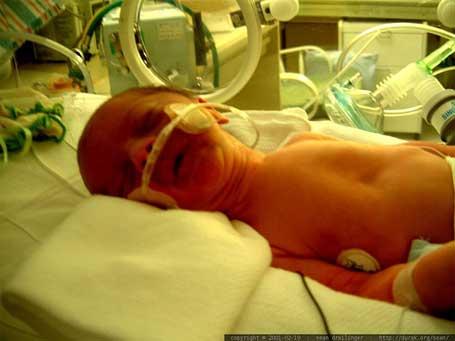 UnB inventa aparelho para UTIs de bebês prematuros