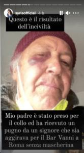 https://www.occhionotizie.it/padre-cantante-sirya-pugni-uomo-mascherina/