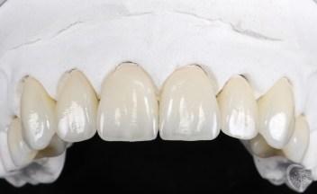 dental-ceramic-crowns