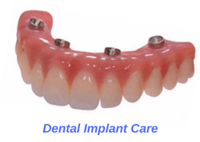 dental-implant-caring