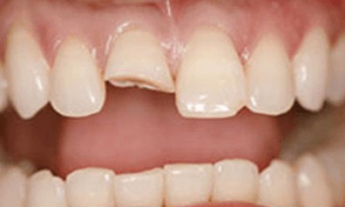 before-dental-crown