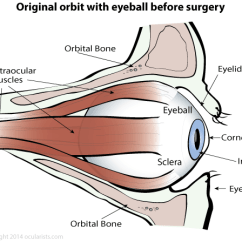 Diagram Of Artificial Eye Parts A Speaker Prosthetic Steps Preparing For Surgery Ocularists Com Original Orbit With Eyeball Before
