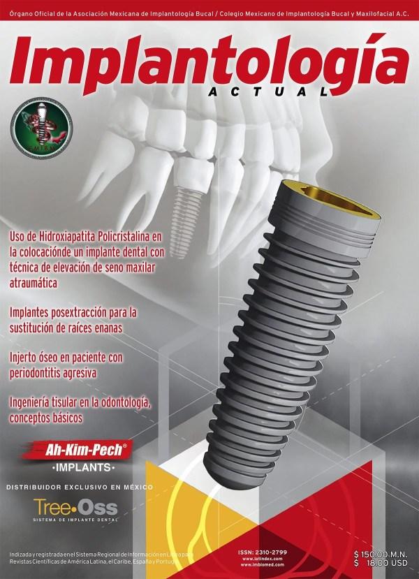 Implantología Actual 27
