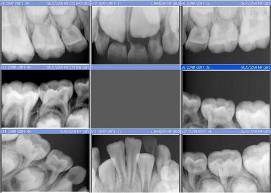Odontologia Infantil  tratamientos dentales