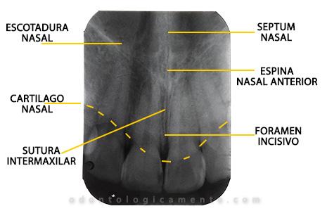 anatomía radiografía dental