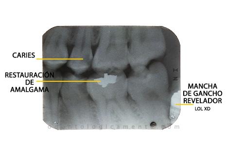 Restauracion amalgama en radiografia