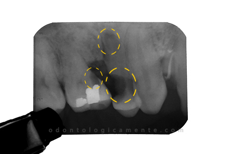 areas radiolucidas en radiografia periapical