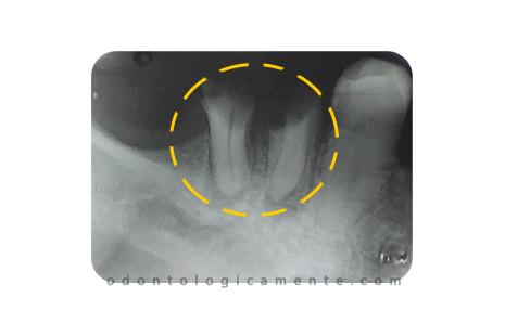 fractura dental radiografía