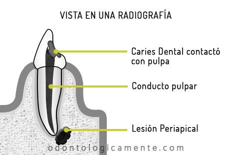 radiografía en endodoncia
