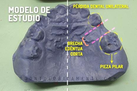 Modelo de yeso odontología