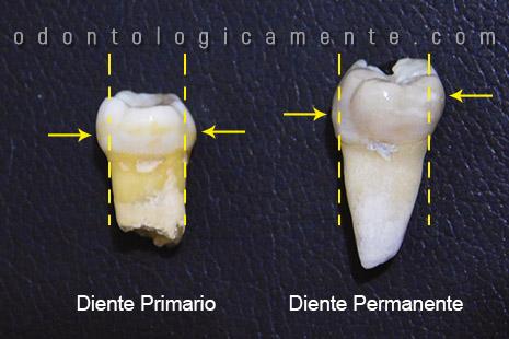 Alturas de contorno de dientes