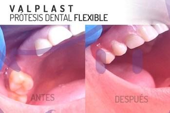 Protesis dental valplast