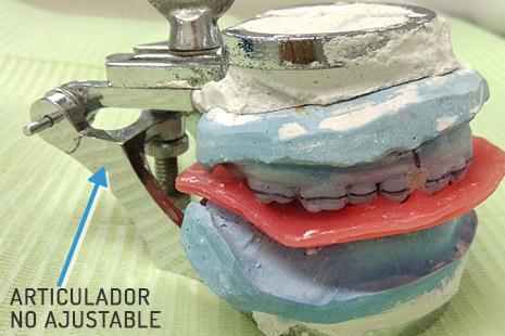 Articuladores dentales no ajustable