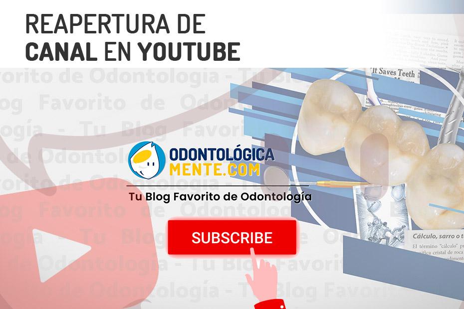 Reapertura de canal en Youtube