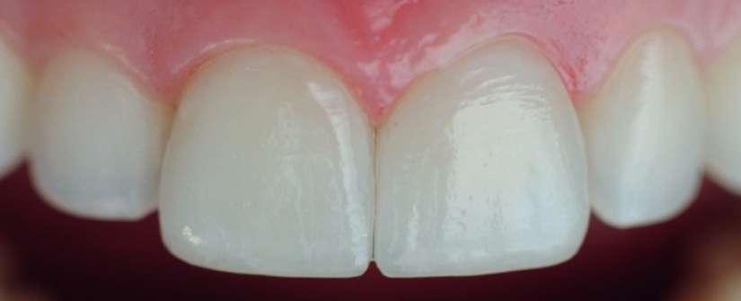 Algo além de dentes mais brancos