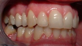 Vetroceramica composite 14-15