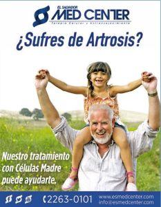 SUFRES de ARTROSIS prueba este tratamiento con celualas madre - 22abr15