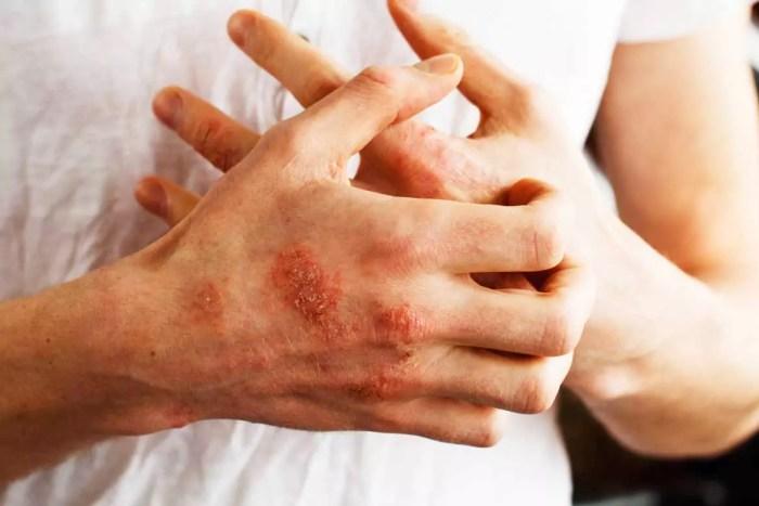 Mains homme eczema