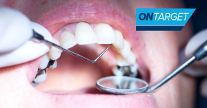 Close-up photo showing amalgam in a patient with OnTarget logo.