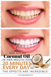 Swish coconut oil in your mouth before brushing teeth to whiten them naturally.