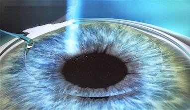 oftalmologo - cirugia refractiva