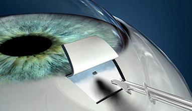 oftalmologo cirugia de glaucoma