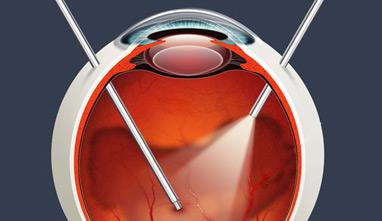 oftalmologo - cirugia de retina