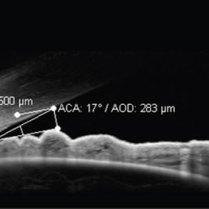 spectralis-segmentoanterior-4