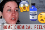 Chemical Peel Thumbnail