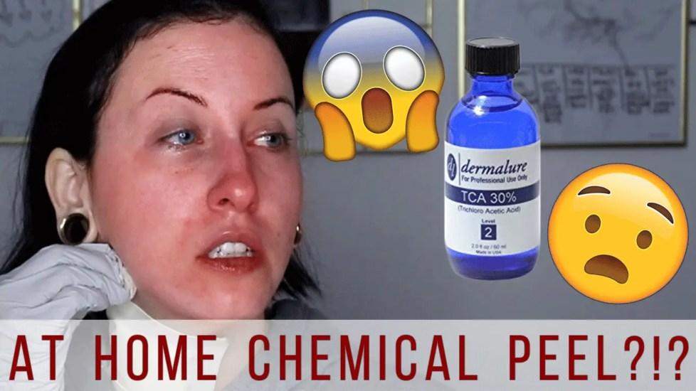 Chemical Peel Thumbnail