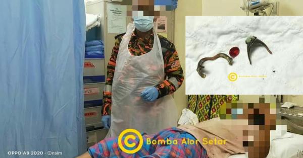 Terpaksa Potong Cincin Permata Melekat Di Kemaluan Lelaki