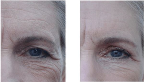 Rodan and Fields Redefine results