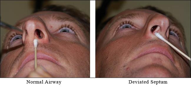 Deviated Septum Rated Medicine