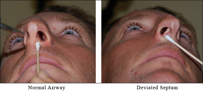Deviated Septum: Facts & Information
