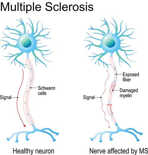 Understanding Multiple Sclerosis | Brain Institute | OHSU