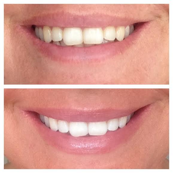 tænder final