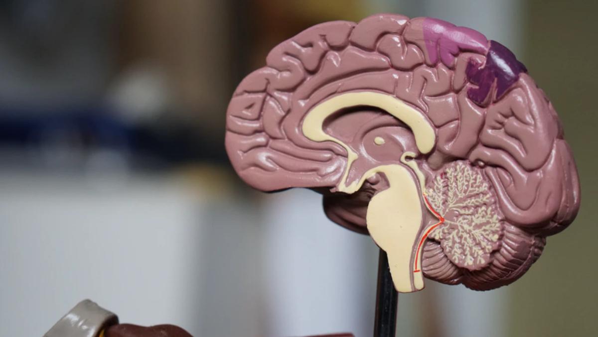 cerebro, sesgo cognitivo