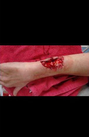 Vicious Dog Attacks  Oklahoma