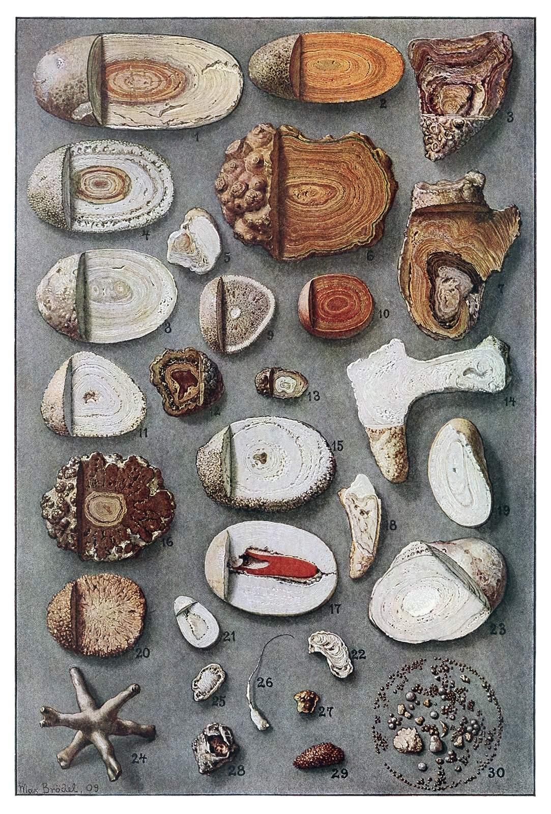 Kidney and Bladder Stones  Old Book Illustrations