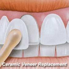 Ceramic Veneer Replacement