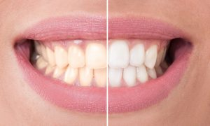 3 Types of Food That Can Leave Stains on Your Teeth