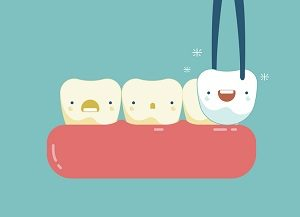 What to Do After a Tooth Extraction Procedure