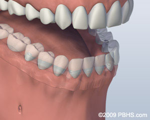 Mouth with Bar Attachment Denture Secured onto Lower Jaw by Four Implants