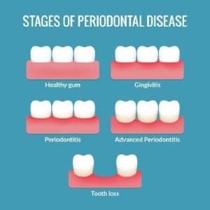 Gum Disease Treatment in Olney, MD