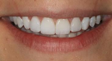 Porcelain Veneers Vs. Crowns Smile Designs of Olney