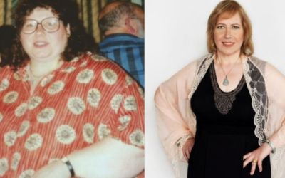 55-Year-Old Woman Lost 280 Pounds By Hypnosis