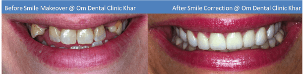 Top Cosmetic Dentists Mumbai - Smile Correction Makeover