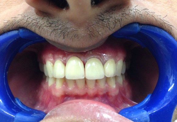 After Treatment With Zirconia Metal Free Crowns