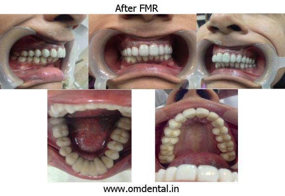 Full Mouth Reconstruction – After