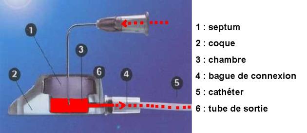 Bonnes Pratiques dutilisation dune Chambre  Cathter Implantable CCI  Schma gnral